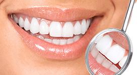 teeth whitening special in lynchburg va