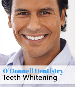 Teeth Whitening in Lynchburg Virginia